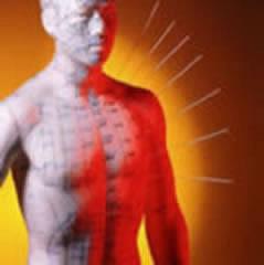 pop acupunctuur